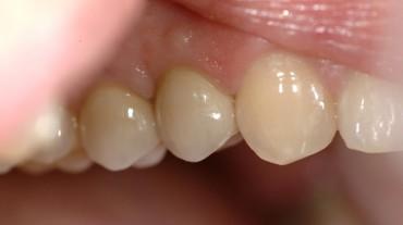Ansichten-Implantate-Beispiel-3-MK-bukkal-2