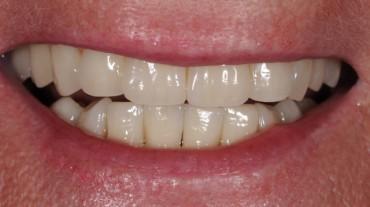 Ansichten-Implantate-Beispiel-4-Laecheln-Patientin-7